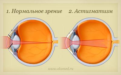 Можно ли делать операцию по близорукости