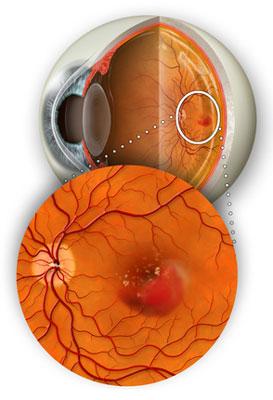 Как вернуть зрение при близорукости за неделю