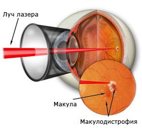 Правила ухода за зрением и глазами